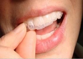 سفید کردن دندان(Bleaching)
