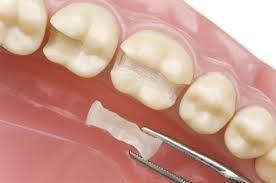 اینله آنله در دندانپزشکی زیبایی