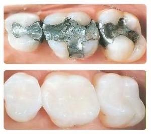 مواد ترمیمی در دندانپزشکی زیبایی