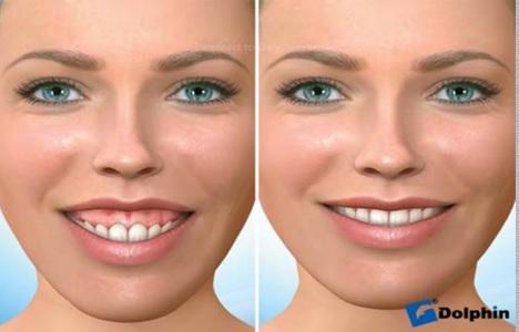 درمان زیبایی لثه