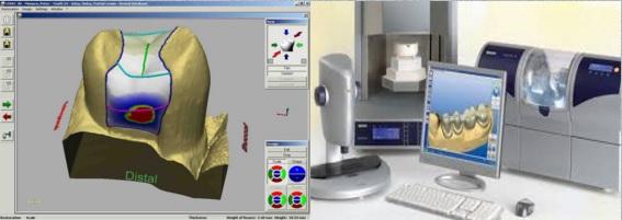 ساخت ترمیم سرامیکی  دستگاه CAD CAM کد کم کدکم