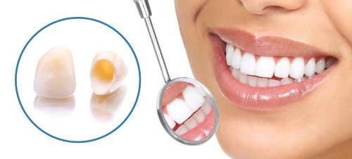 هزینه روکش دندان چقدر است؟