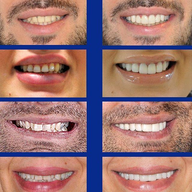 فیسینگ دندان ( ونیر کامپوزیت )چیست