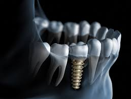 ایمپلنت دندان چقدر طول میکشه