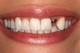 ایمپلنت دندان بدون جراحی
