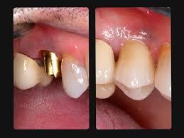 کاشت ایمپلنت دندان برای دندانهای مختلف