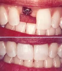 کاشت ایمپلنت دندان فوری