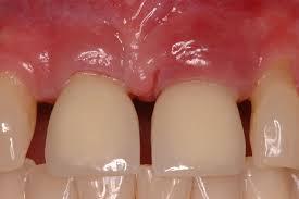 بهترین دندانپزشک ایمپلنت