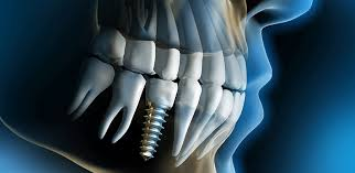 دندان طبیعی