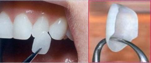 [تصویر: لمینت دندان مناسب برای دندان ها]