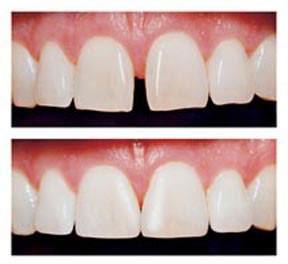 محاسن و معایب و قیمت لمینت سرامیکی دندان