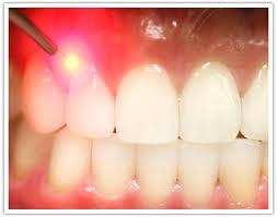 کاربرد لیزر در دندانپزشکی زیبایی