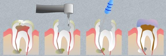بعد از عصب کشی دندان چه قرصی بخوریم؟