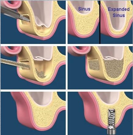 ایمپلنت دندان درمان  سینوس لیفت