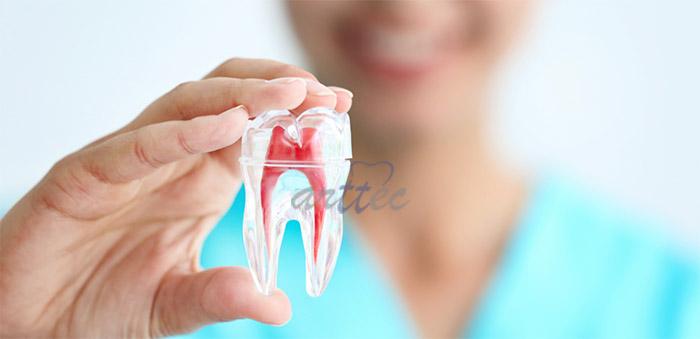 درمان خانگی درد دندان عصب کشی شده