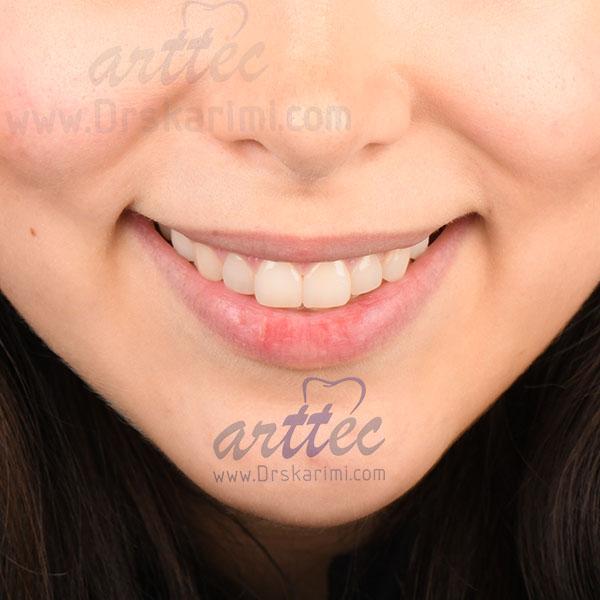 آنالیز لبخند توسط دندانپزشک زیبایی