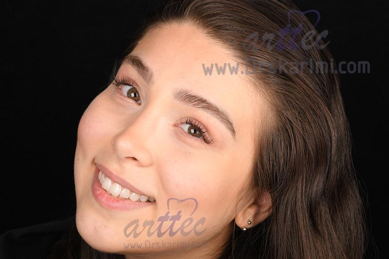 طراحی لبخند زیبا دلنشین توسط دندانپزشک زیبایی