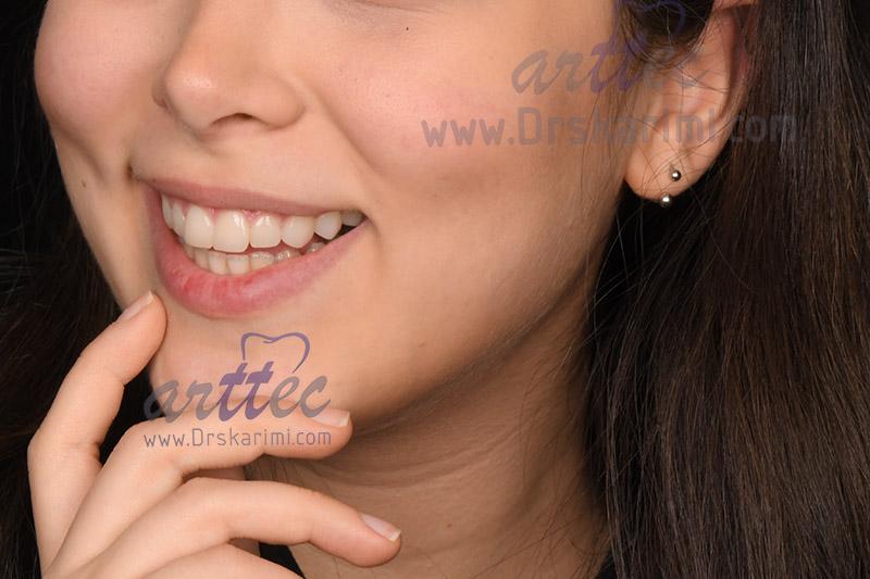 طراحی لبخند چیست؟