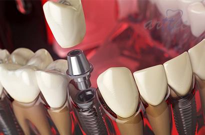 چه کسانی نمی توانند ایمپلنت دندان کنند؟
