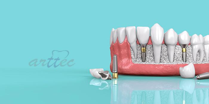مدت زمان ایمپلنت دندان جلو چقدر است؟