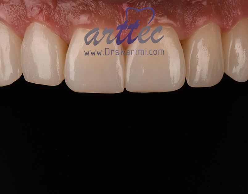 ارتودنسی بهتر است یا لمینت دندان؟