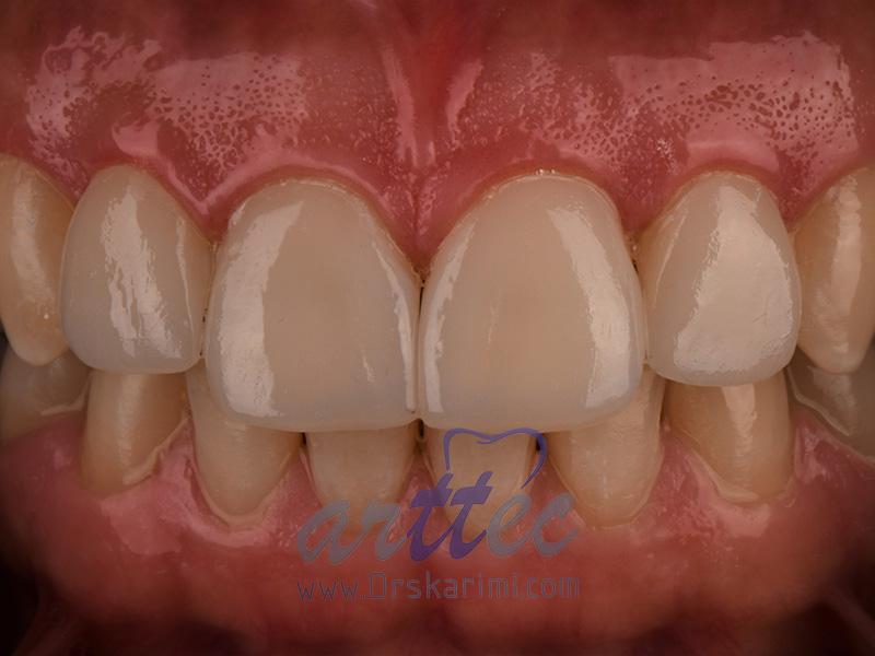 لمینت کامپوزیتی دندان