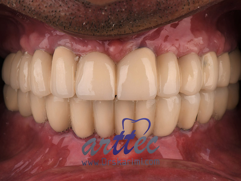 ایمپلنت دندان چند مرحله دارد؟