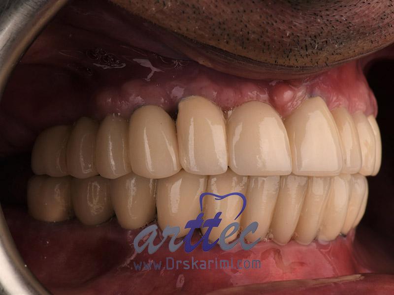آیا روکش دندان باعث پوسیدگی میشود
