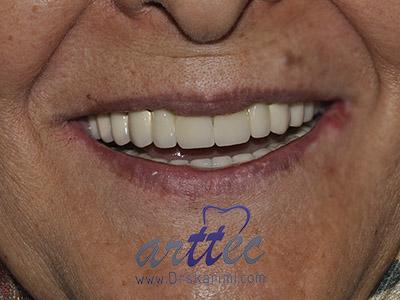 ایمپلنت دندان چند جلسه طول میکشد