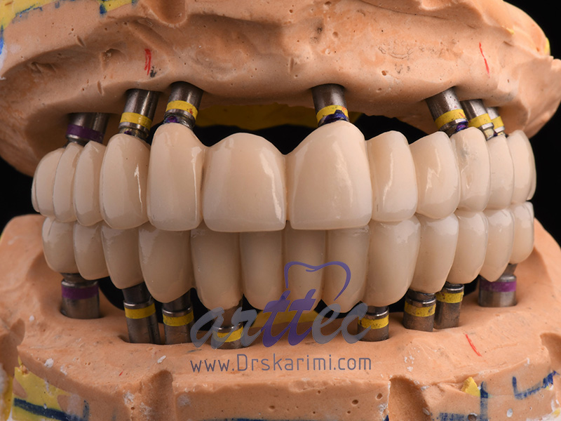 ایمپلنت دندان چند جلسه طول میکشد؟