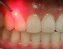 لیزر دندان