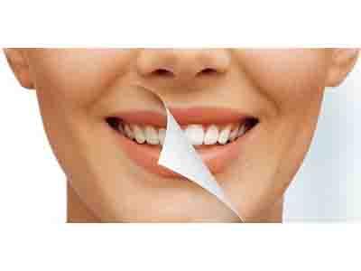 نکات ضروری قبل از مراجعه نزد دندانپزشک زیبایی