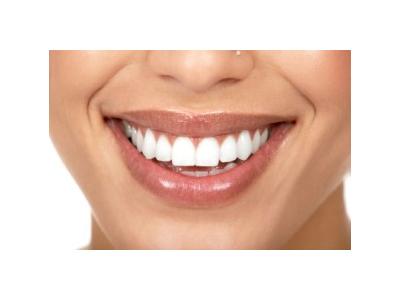 دندانپزشکی زیبایی دیجیتال