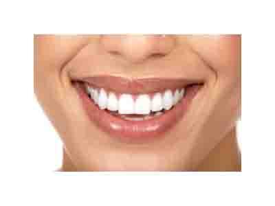 روشهای دندانپزشک زیبایی