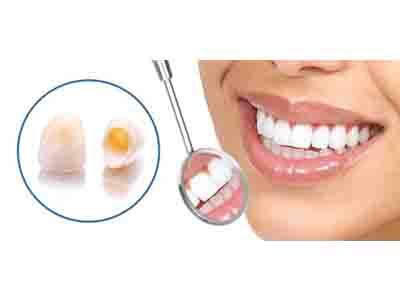 ترمیم روکش دندان در دندانپزشکی زیبایی