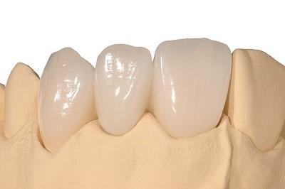 درد روکش دندان